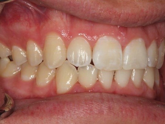 Clear Aligner Ortho Images After