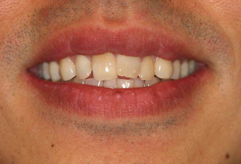 Clear Aligner Ortho Images Before