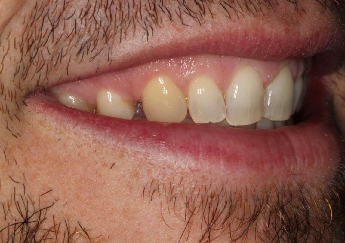 Smile Design - Before/After Before