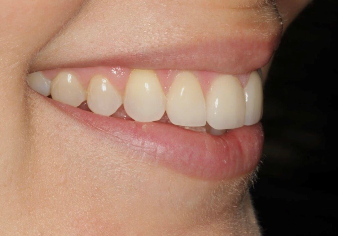 Smile Design - Before/After After