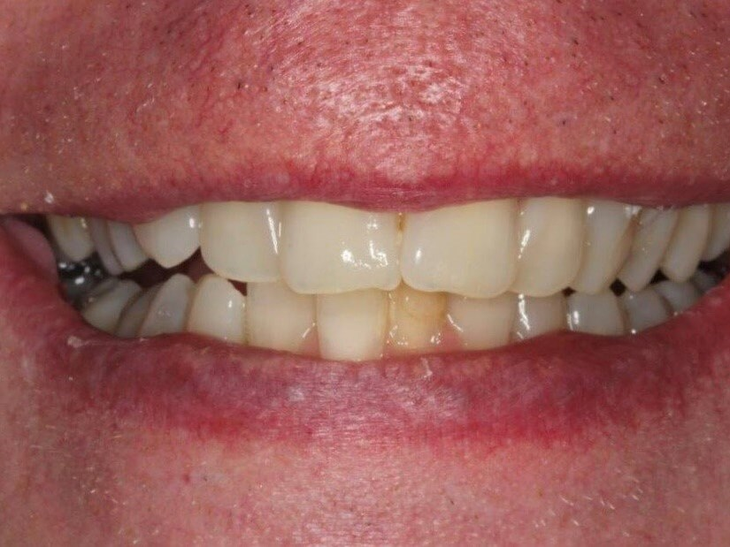 Clear Orthodontic Aligners Before