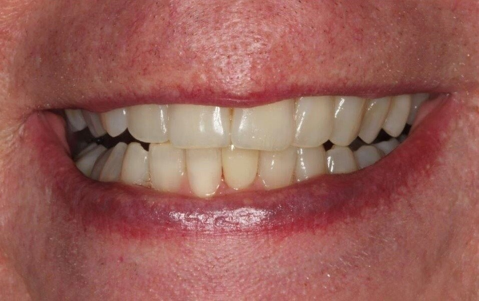 Clear Orthodontic Aligners After