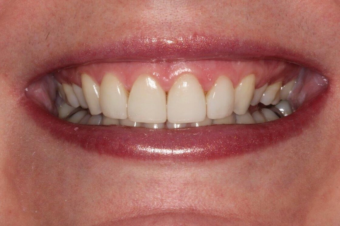 Smile Enhancement After