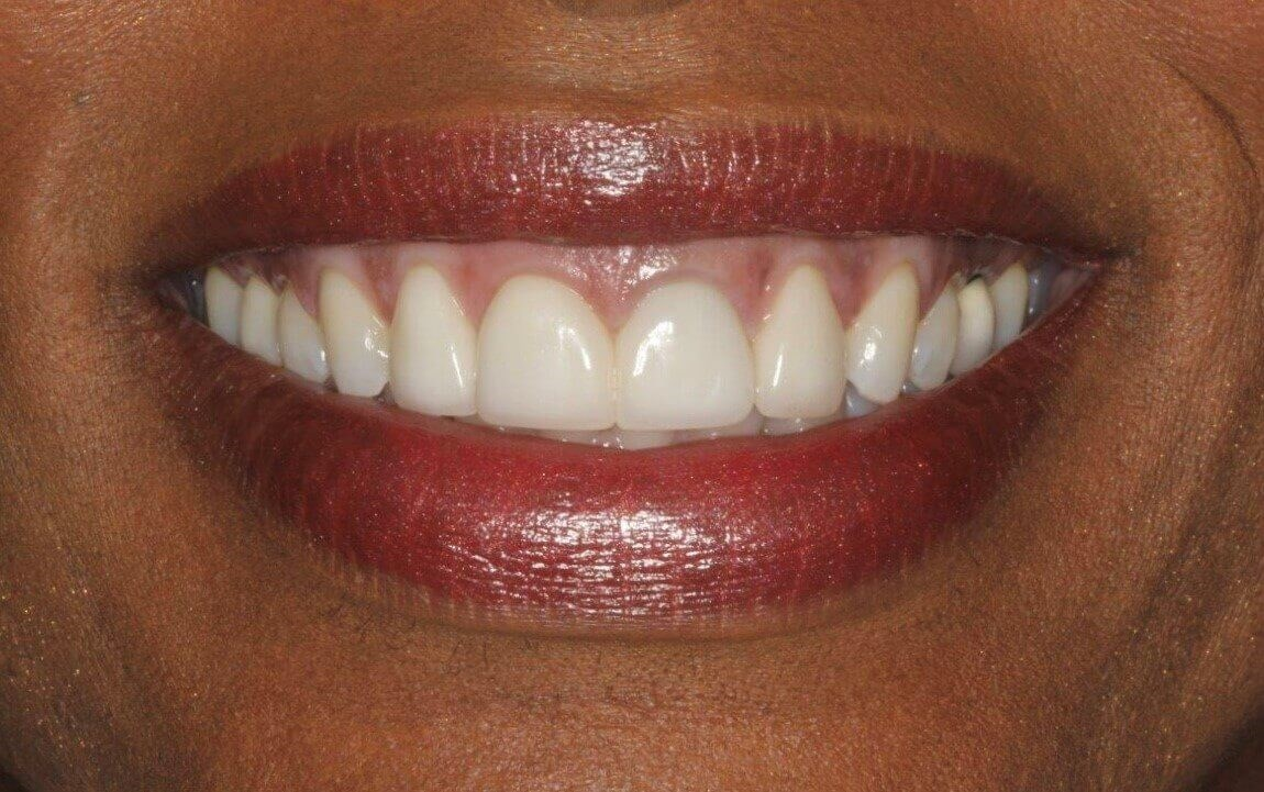 Smile Design Before/After After