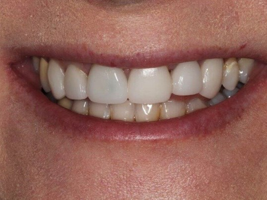 Smile Makeover Before/After Before