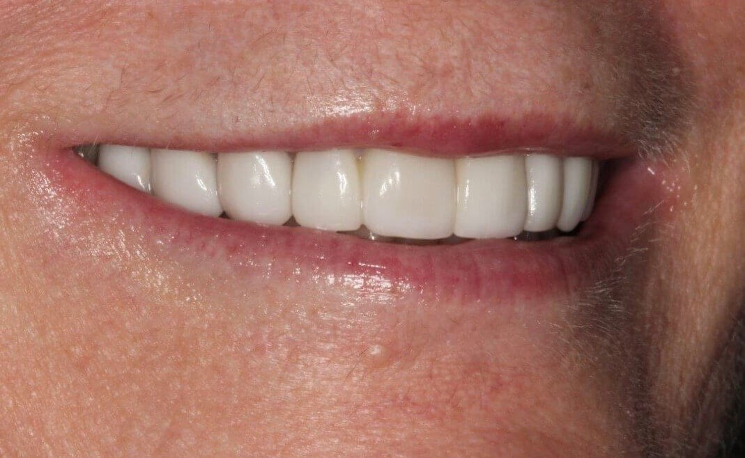 Smile Makeover Before/After After