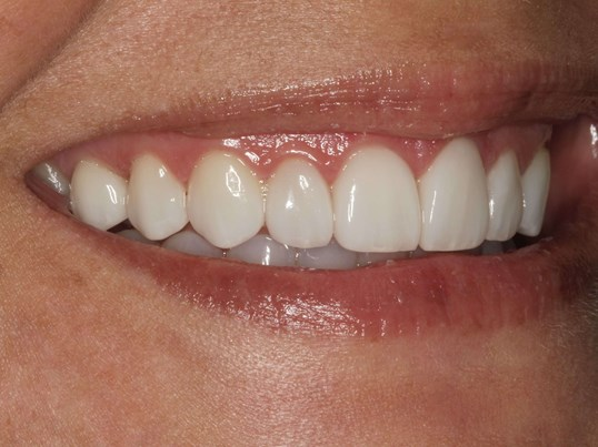 Smile Design with Veneers After
